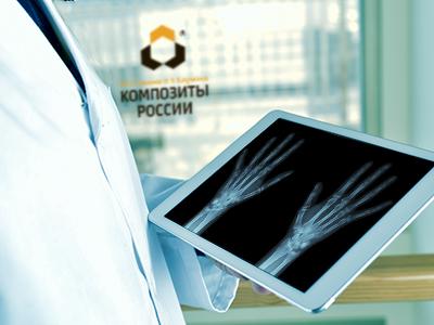 Создание биоразлагаемых имплантатов для фиксации костей